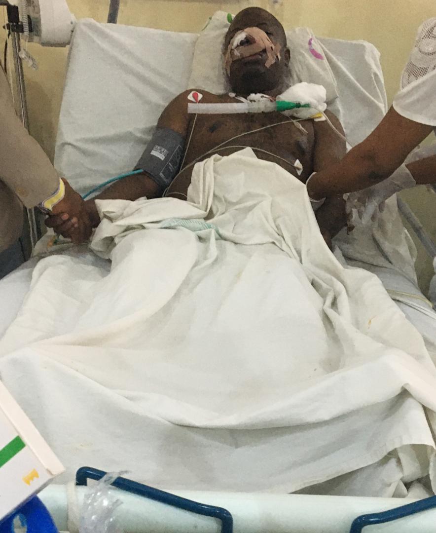 Woman attacks husband, cuts off his nose, upper teeth in Owerri