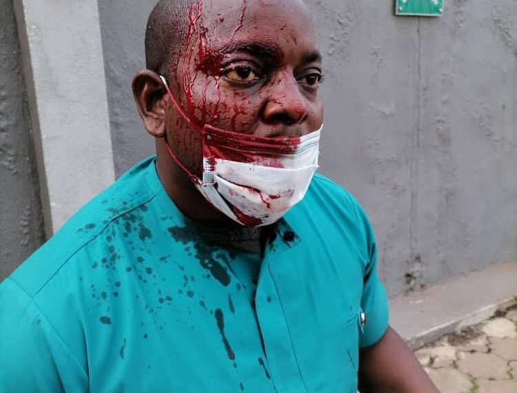 Enugu NMA election turns bloody, chaotic