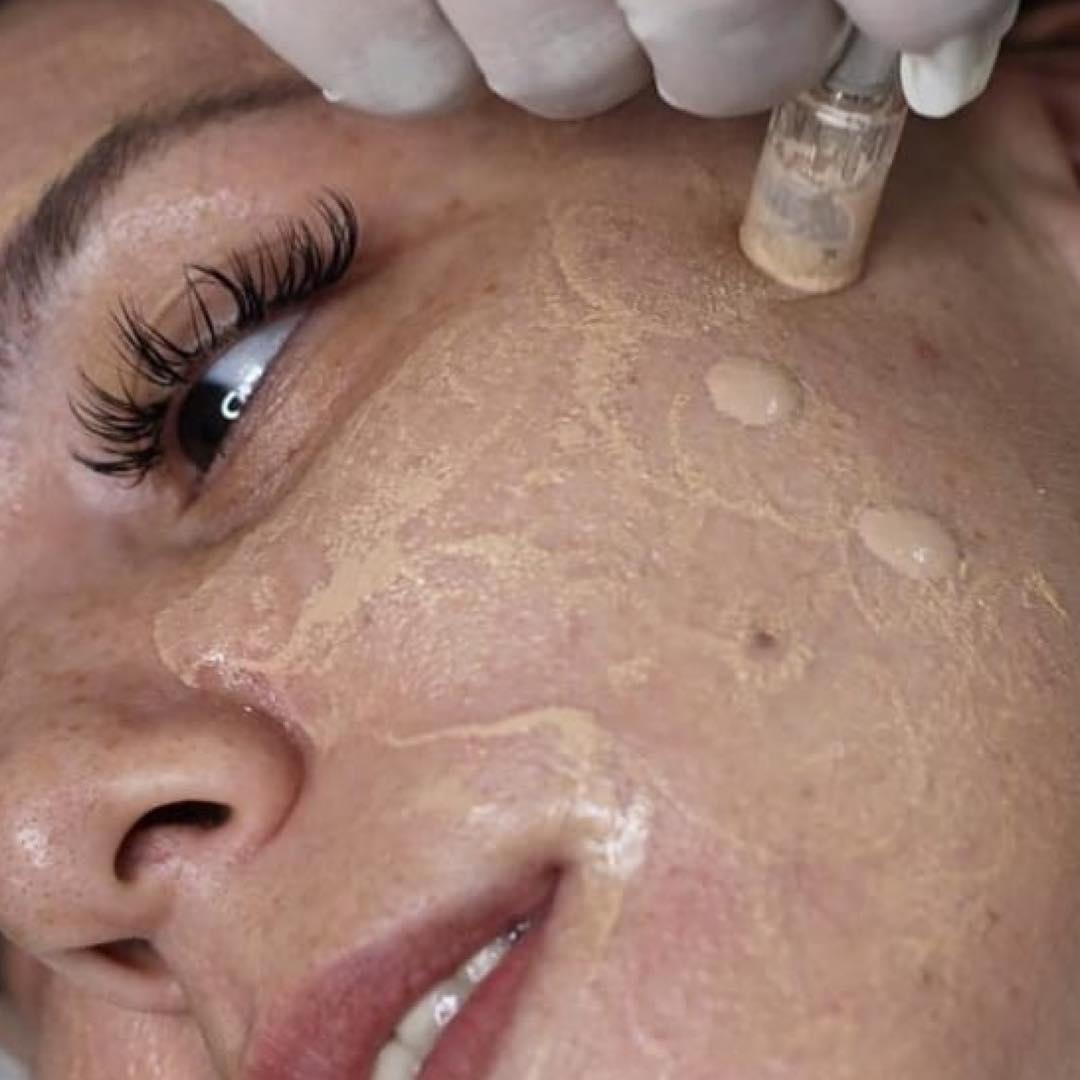 Semi-permanent foundation: the new movement in beauty treatment